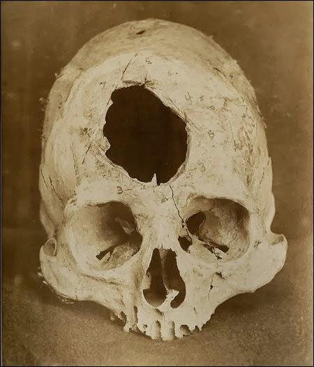 A trepanned skull