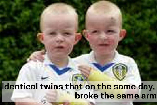 Identical twins that on the same day, broke the same arm
