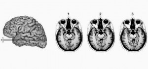 If You Have Your Amygdala Removed, You Lose Any Sense Of Fear