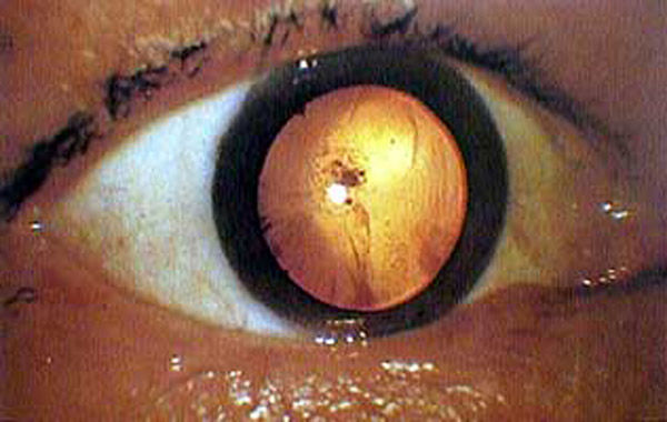 Eyeball of an A-bomb victim