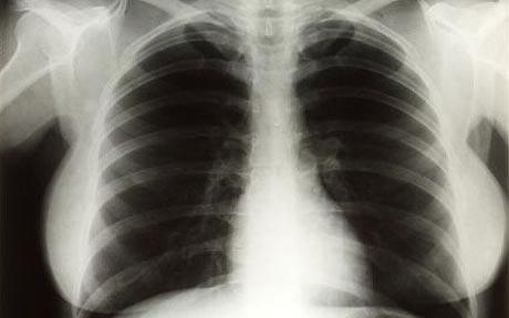 Marilyn Monroe chest X-rays