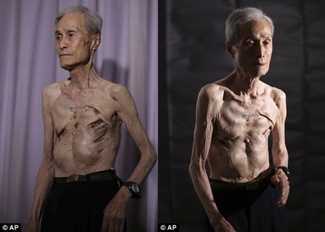 Nagasaki survivor photos