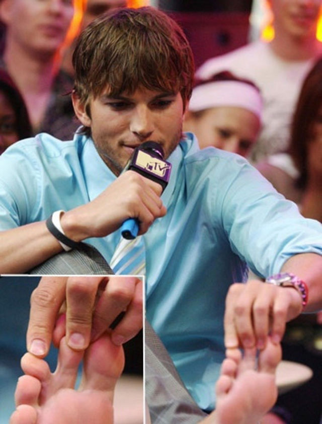Ashton Kutcher - Webbed toes