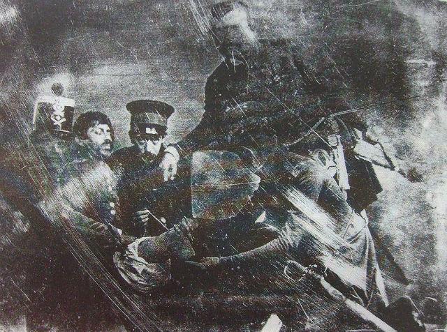 first leg amputation photograph