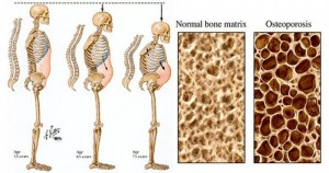 Soda and Osteoporosis