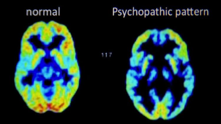 Brain of a Psychopath