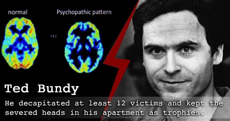 Brain of Serial Killer
