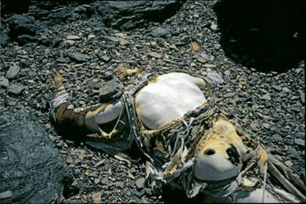 George Mallory, one of the world's best preserved bodies