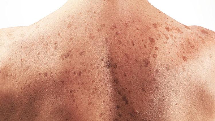 skin cancer australia