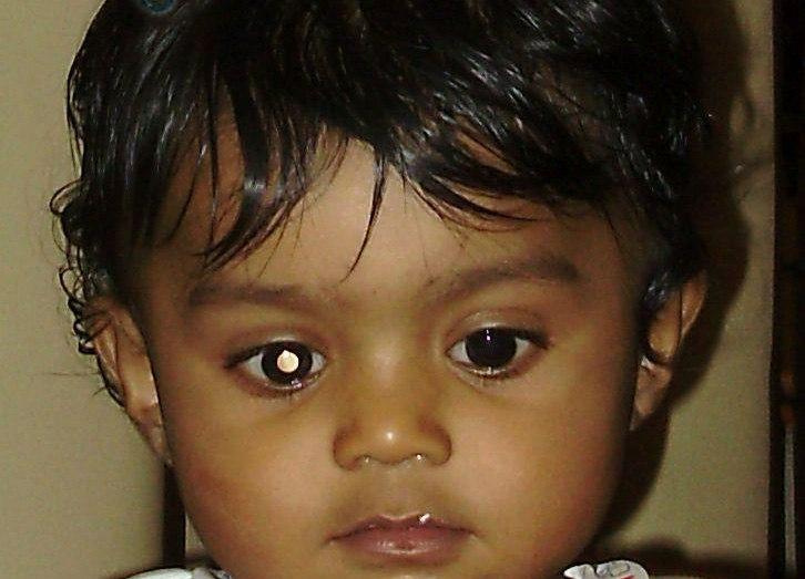 White Flash in One Eye - Retinoblastoma