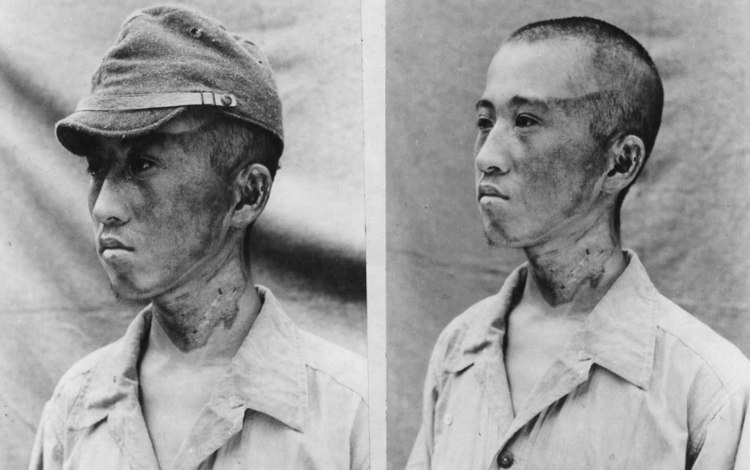 Radiation Victims of Hiroshima