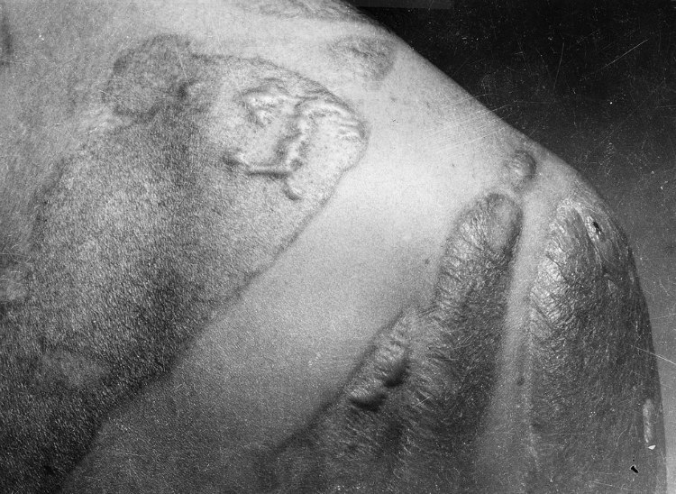 Radiation Victims of Hiroshima