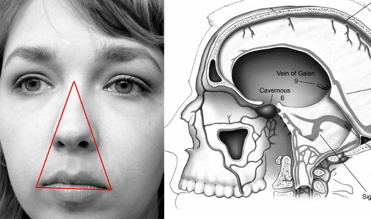 Danger Triangle Zone and Cavernous Sinus