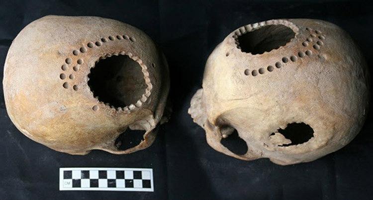 Ancient Inca Trepanation