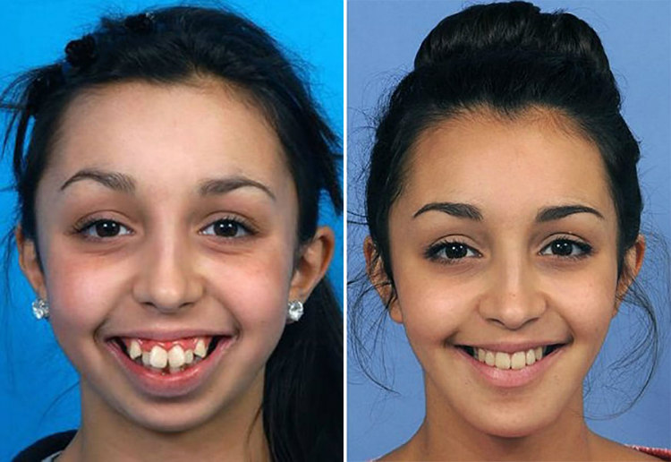 how to fix a crooked jaw without surgery