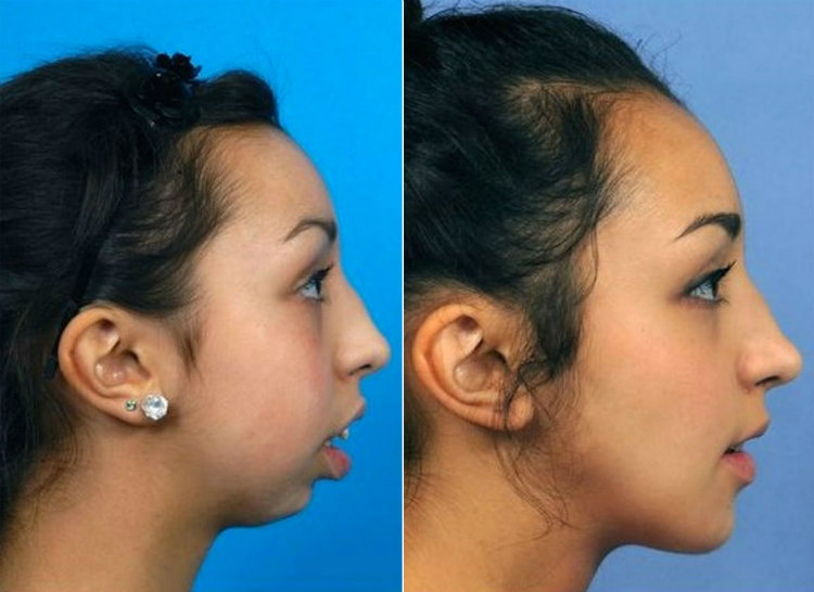 Ellie Jones - Before and After Surgery