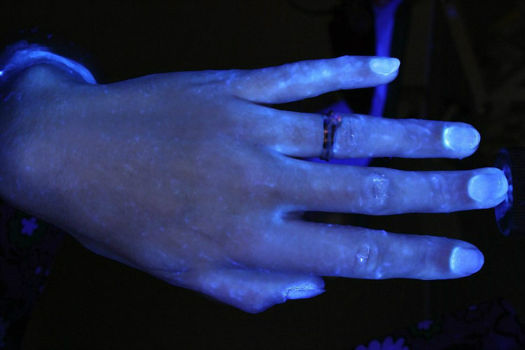 Hands and Hygiene - Tested with Glo Germ Gel Under UV Light (5)