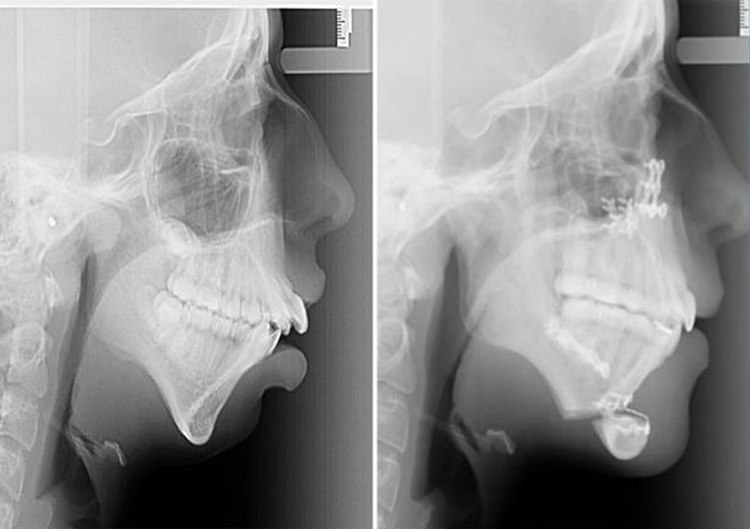 Ellie Jones - Before and After X-Rays