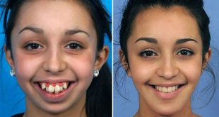 Remarkable Jaw Surgery