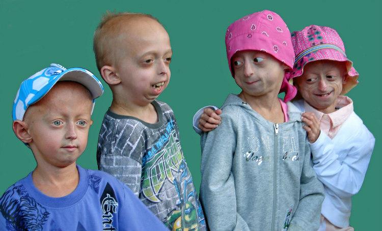 Progeria Prevalence