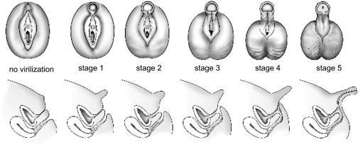 Guevedoces Stages