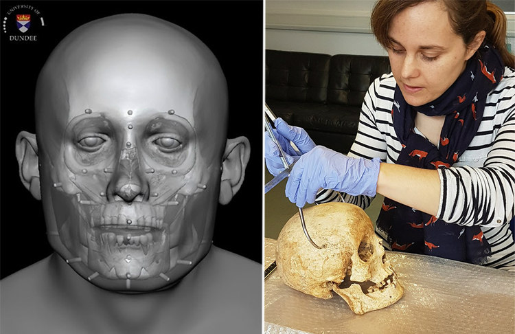 Facial Reconstruction of Context 958 & Dr Sarah Inskip Examining the Skull