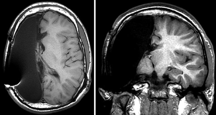 Hemispherectomy