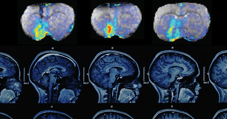 MRI Dopamine Concentrations