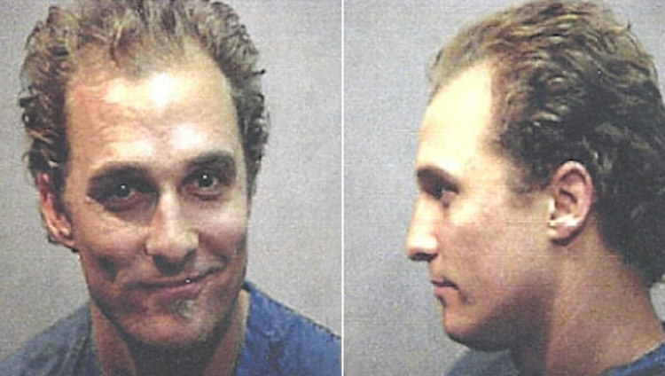 McConaughey Early Hair Loss