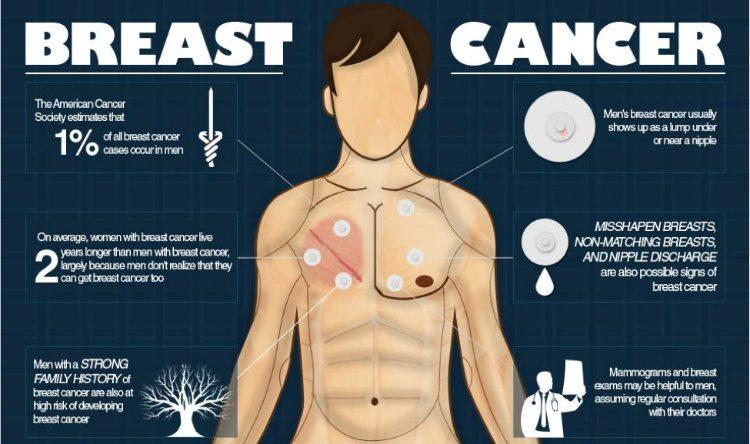 Breast cancer in men