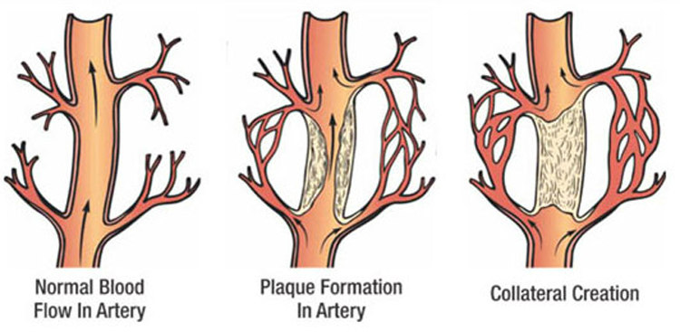 Collateral Circulation in Arteries