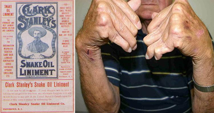 Snake Oil, Arthritis patient