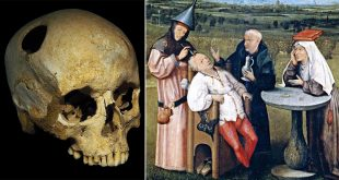 Historic medical treatments