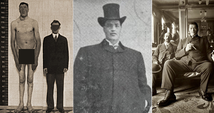 Adam Rainer and gigantism