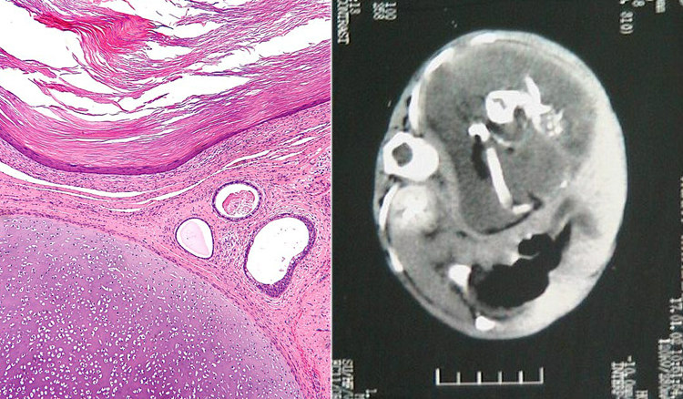 Teratoma and Fetus in Fetu