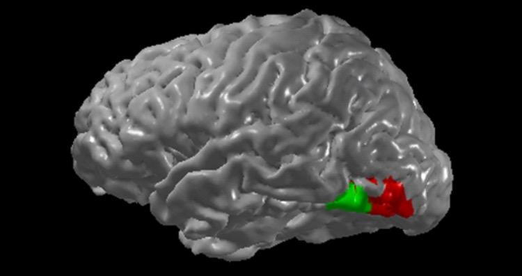 Synaesthesia brain