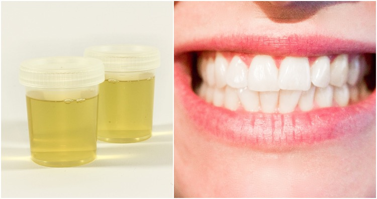 Portuguese urine for teeth whitening
