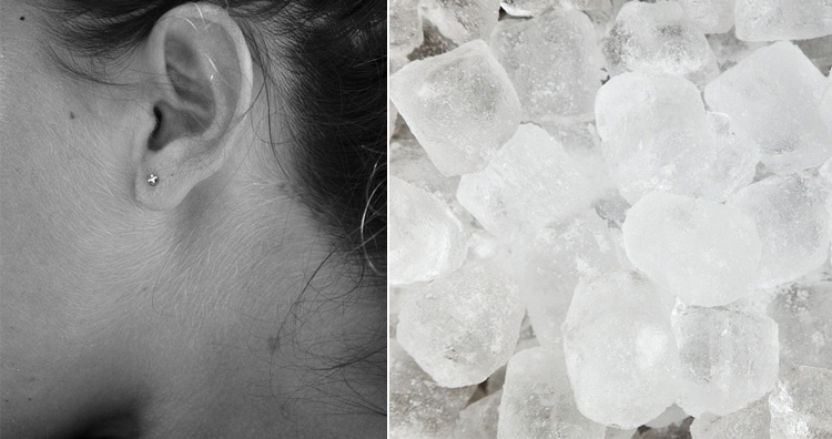 Ice on neck