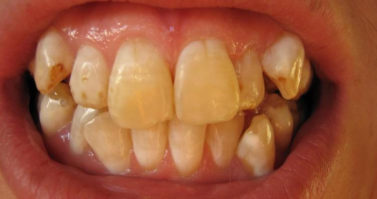 Brown Teeth