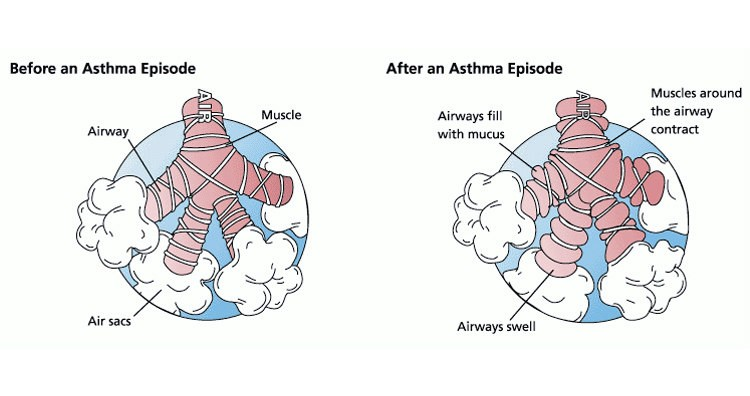 Asthma Episode (Before and After)