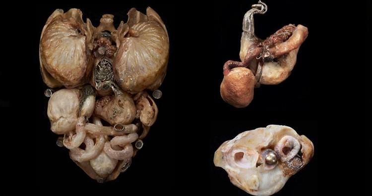 Adam's organ