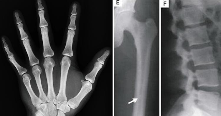 Dense bones that never fracture