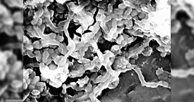 Carnobacterium pleistocenium