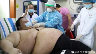 Chinese Man Gains 100 Kilograms