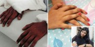 "Transplanted ""male hands"" turn feminine"