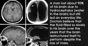 medical cases that surprised doctors