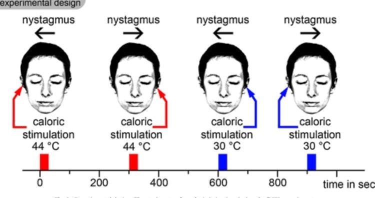 Caloric stimulation